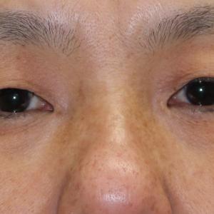 【1年後】47歳女性 うわまぶたのたるみを取りながらの切開法二重手術②