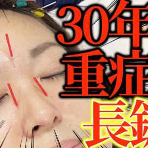 【アレルギー 鍼治療】30年悩むアレルギー 鼻炎で鼻づまりで口呼吸で喉が痛い薬が欠かせない!