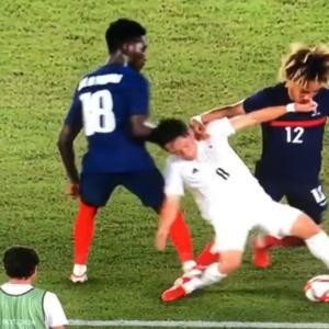 サッカーフランス選手 三好選手のふくらはぎを踏みつける