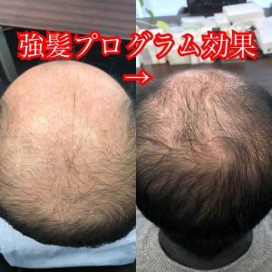 強髪プログラムの結果!