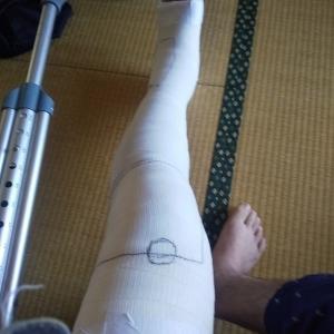 「交通事故、左足外果骨折、左膝蓋骨骨折治療日記」の巻