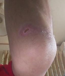 「交通事故、左足外果骨折、左膝蓋骨骨折治療日記③」の巻