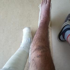 「交通事故、左足外果骨折、左膝蓋骨骨折治療日記④」の巻