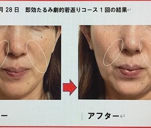 #コロナ流行でもキャンセルなし!定期的なリフトアップ施術で鼻唇溝を薄くする