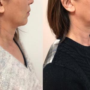 #美人を感じる瞬間❣❣フォーカスネオで本当に効く横顔浮腫みと二重アゴ改善対策!