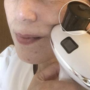 #コロナ渦でできる家庭用針ナシ水光注射!たるみ、シワにエステ級の結果!