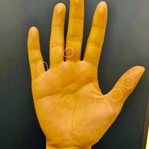 皮膚のトラブル:汗疱(かんぽう)について