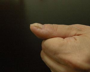 爪の凸凹…
