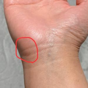 この痛みは腱鞘炎??