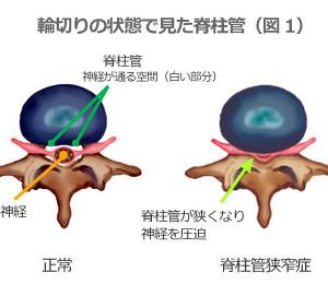 ラカン心理学勉強会【脊柱管狭窄症】