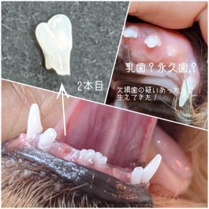 2本目の乳歯