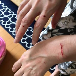 飼い猫に手を噛まれる