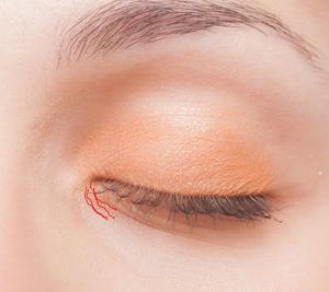 下まぶたの目がしら斜め小ジワを解消する方法