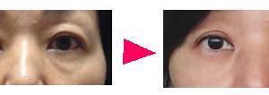 目の下のたるみ(目袋)が改善する経緯