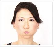 口に空気を入れる簡単な方法で ほうれい線を解消する