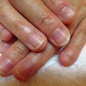 深爪矯正で短い爪も薄い爪も丈夫にきれいに伸びます♪