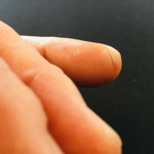 【ピアノ】 左手薬指その後