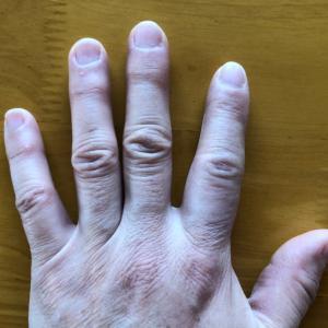 指が腫れる