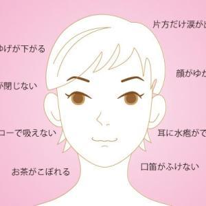 帯状疱疹と顔面神経麻痺