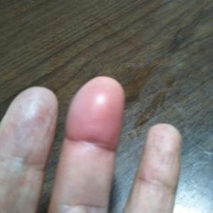 草取りをやりすぎて、指が腫れる。医者に行く