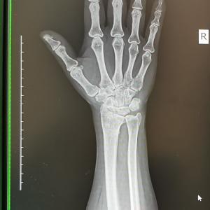 右手首骨折のための通院はひとまず今日で終了です