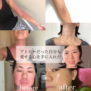 【体験談】激しいアトピー肌を改善し、伝える側に✨
