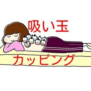 吸い玉・カッピングは長野市一歩堂鍼灸整骨院・整体院