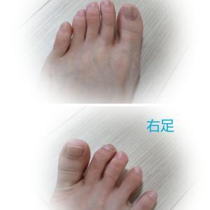 足の指が開いてきたよ(*^▽^*)