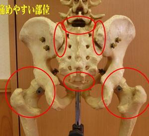 恥骨痛、股関節痛から腰痛ヘ