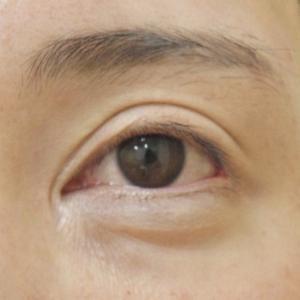 他院での目頭切開後を元に戻す古川法で、食い込みのような傷跡をなくす