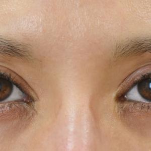 派手めな平行型二重を優しい末広型に戻すための古川法による目頭切開修正手術