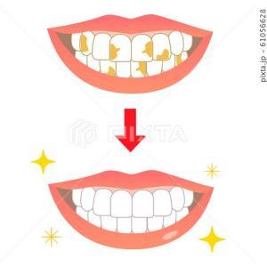 人工関節が入っていて歯医者さんの治療を受けるには
