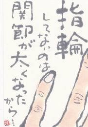 小指と薬指 「関節が太ったから・・」