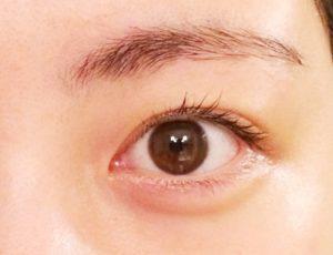 左目にモノモライができたので眼科へ。