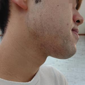 髭脱毛3回目のKさんの変化が凄い!