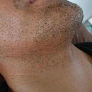 髭脱毛2年でこんなに綺麗に!今日から胸毛と腹脱毛始まりました