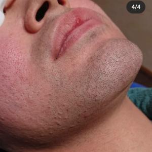 アトピー性皮膚炎と髭脱毛