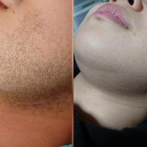 光脱毛は髭を剃らなくても良くなります!何ヵ月?どのぐらいなの?