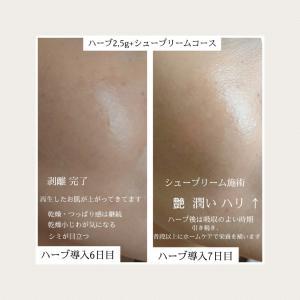 ハーブピーリング+エンビロン  【肌経過4~7日】