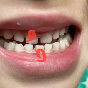 ふーくんの歯
