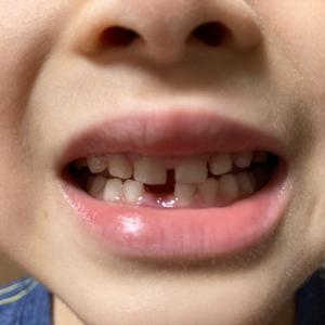食事会と乳歯
