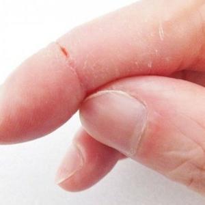 肌のバリア機能をたかめて、手湿疹の予防をしよう!~つくば ネイル&フットケア~