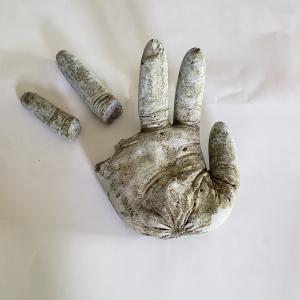 また・・指が折れました。(;>_<;)