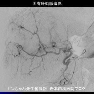 大腸がん肝転移に対する肝動注化学療法