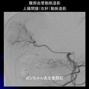 膵がん肝転移への動注