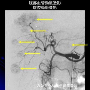 門脈動脈同時塞栓療法と肝動注化学療法