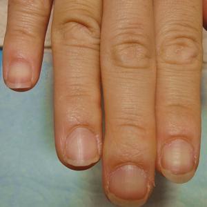 深爪矯正を必要としないパターン
