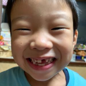 歯が抜けました。