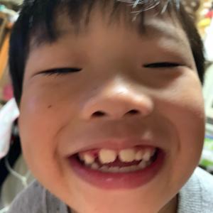 歯が抜けた。