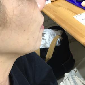 """今日から新しいモニターさん40歳代…人幹細胞エキス・・生の声"""""""